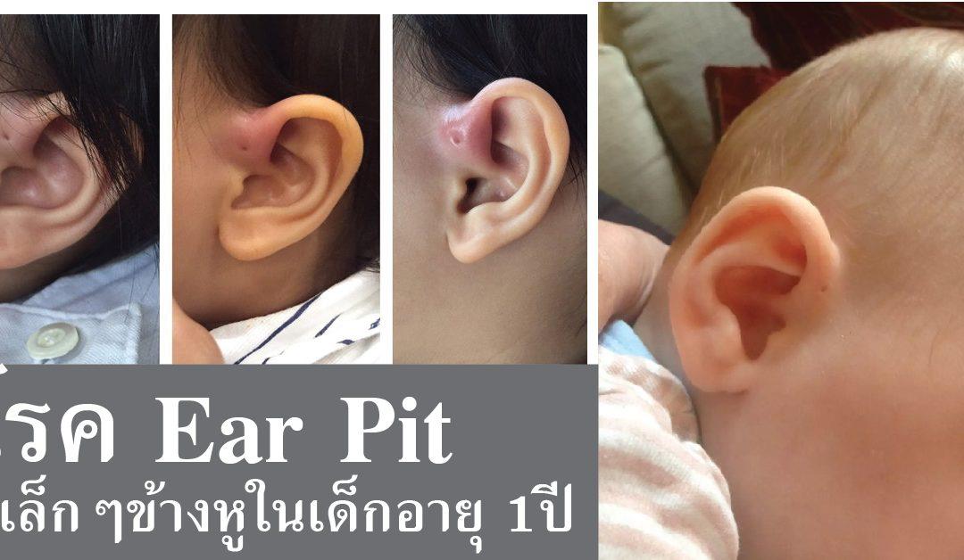 ภัยเงียบกับโรค Ear pit รูเล็กๆข้างหู ในเด็กอายุ 1 ปี